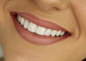 assistente alla poltrona per curare i denti